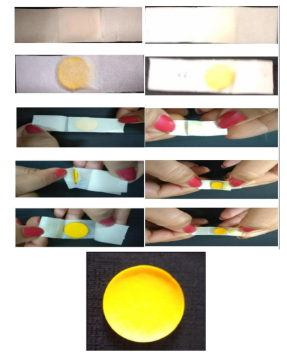 Probiotic and curcumin wound dressing
